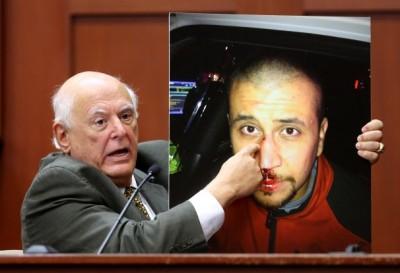 Zimmerman beat up